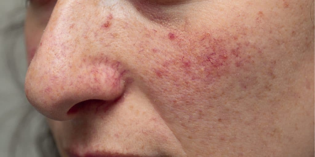 effects of alcohol on the skin